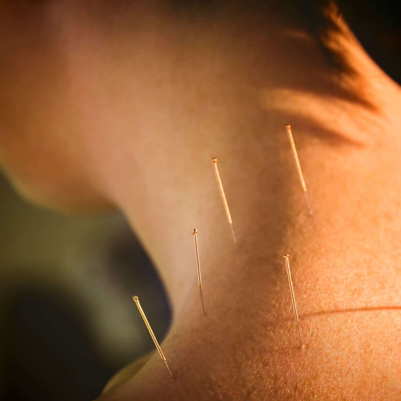 Medical Acupuncture treatment for East London at The Plane Tree