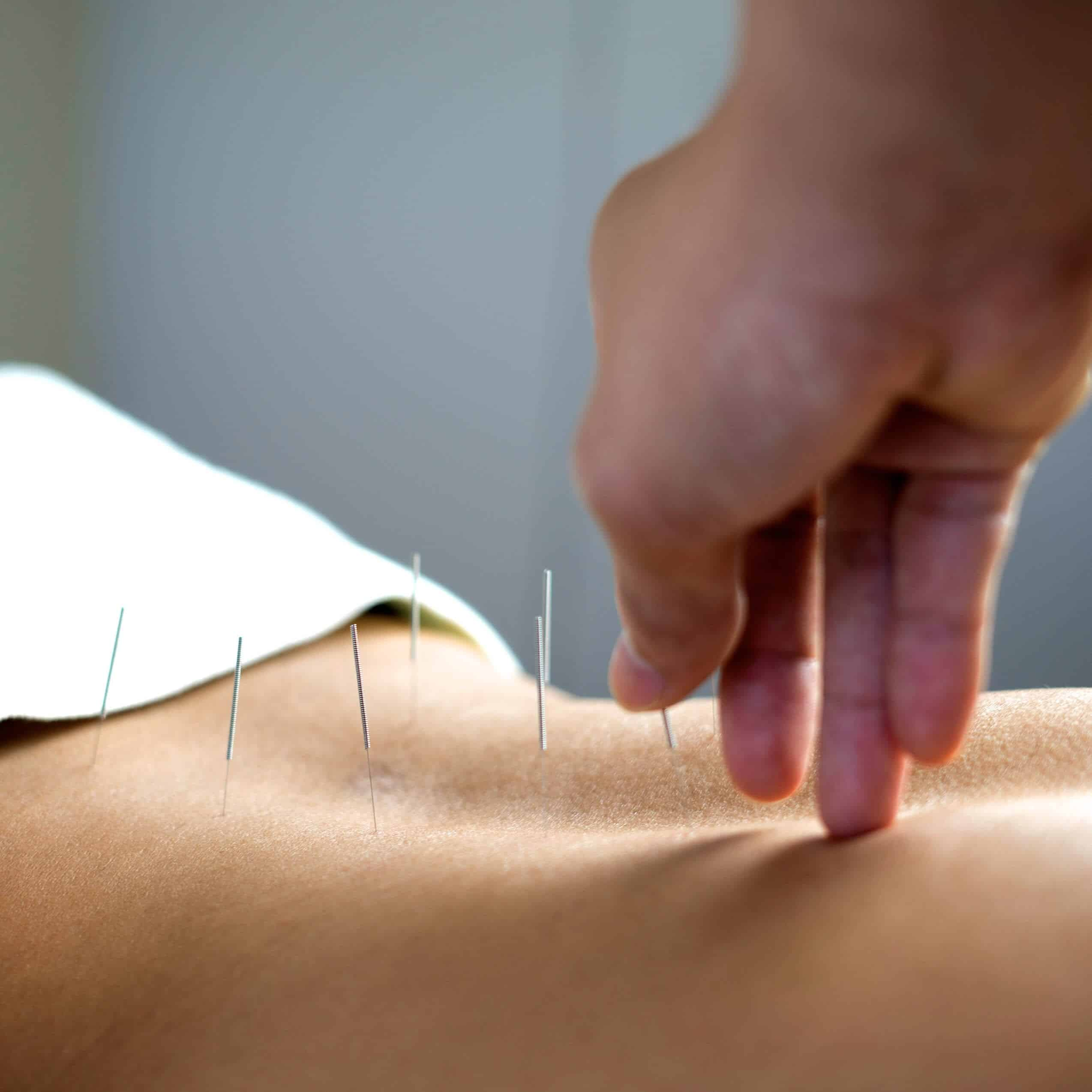 Acupuncture for East London at The Plane Tree